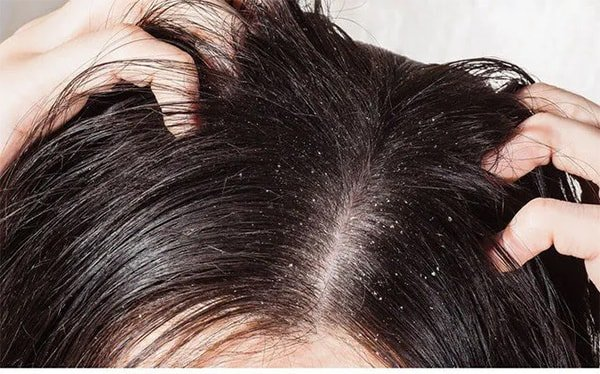 How to treat lice: can you use lice shampoo two days in a row