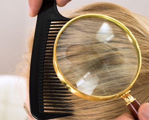 what does lice look like in blonde hair